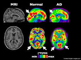 imagerie cérébrale 1